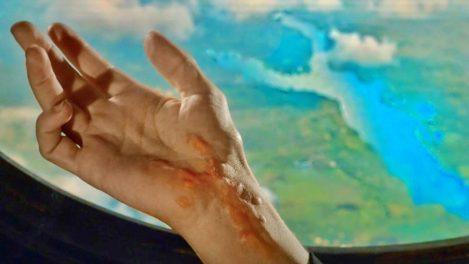 Liz's scar